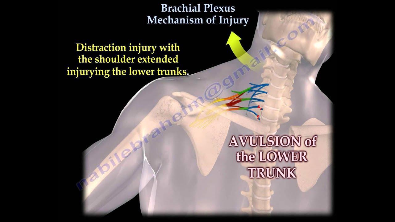 brachialis arthrosis tünetei)