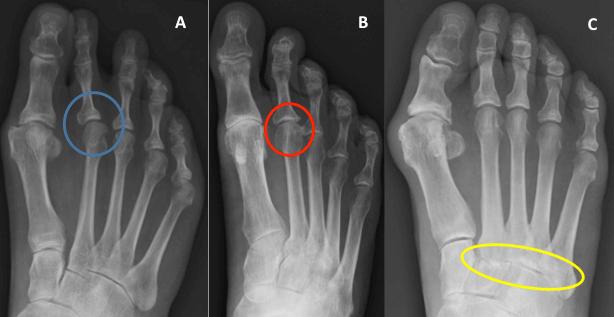 Metatarsalis arthrosis - Végtagfájdalmak kezelése