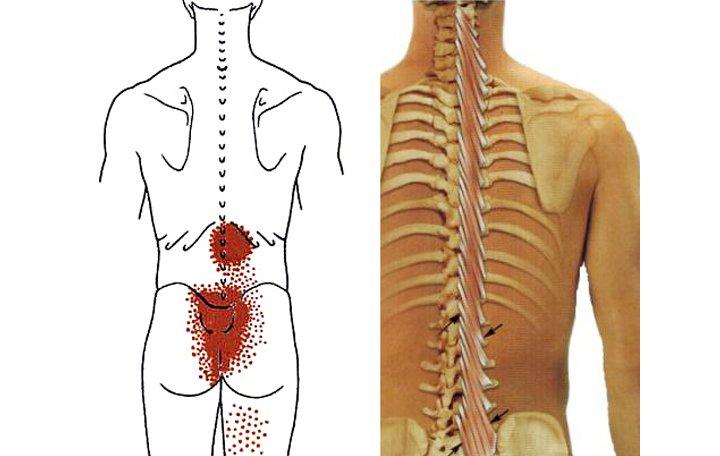 az ágyéki íves ízületek artrózisa a betegség tünetei artrosis és kezelése