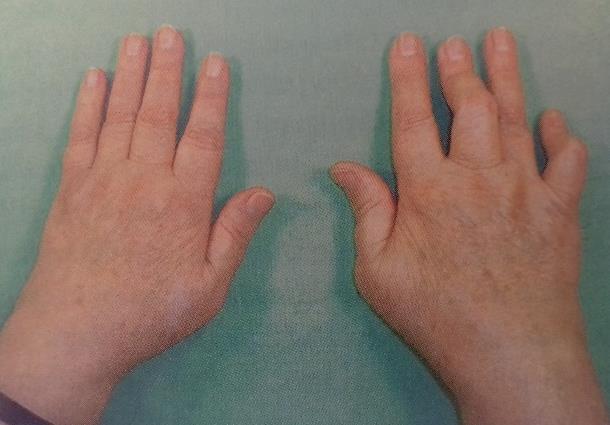 a térd etiológiájának patogenezisében előforduló artrosis)