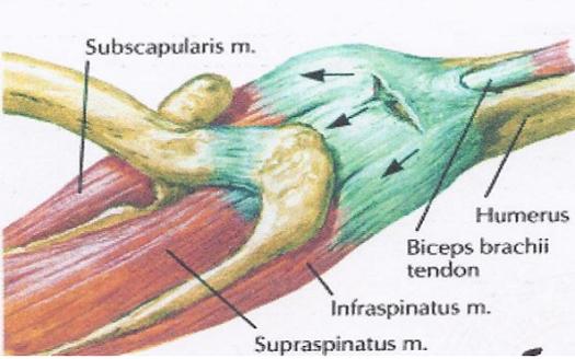 a könyökízület 1. fokú deformáló artrózisa)