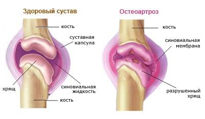 deformáló térd artrózis mi ez