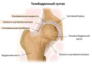 csípőfájás a láb elrablása során