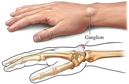 fáj a kéz kis ujjainak ízületei gyógyszerek a láb ízületének gyulladásaira