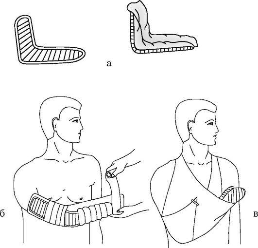 A könyökízület előkészítése. Előkészítés (1-es és 2-es ellenőrzési pont) – ütés