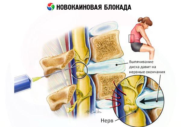 ízületek rheumatoid arthritis ízületi deformáló ízületi kezelések áttekintése