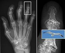 osteoarthritis radiology findings)