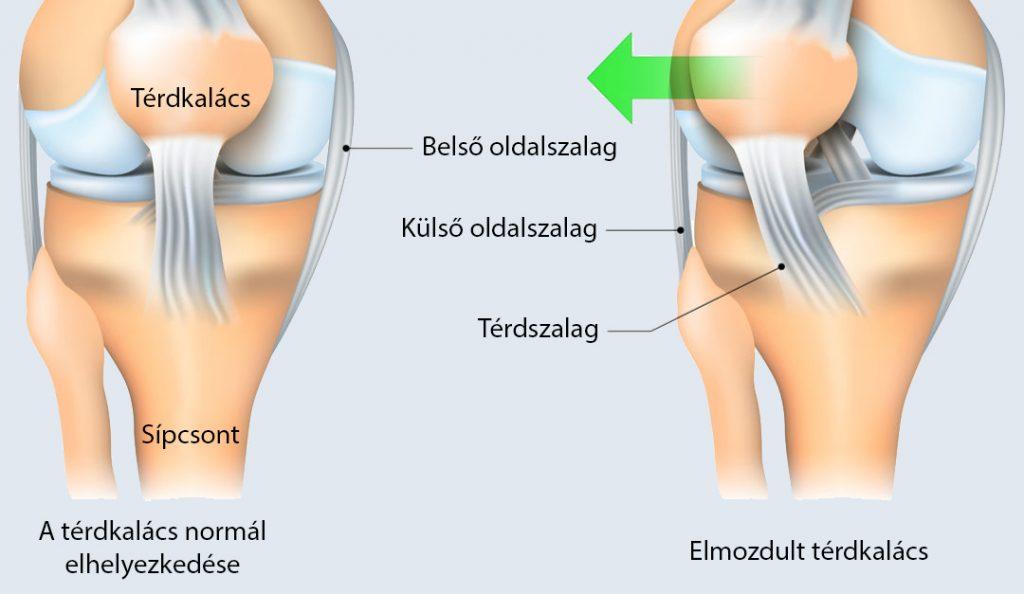 térdízületi károsodás tünetei)