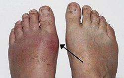 akut fájdalom a lábujj ízületében)