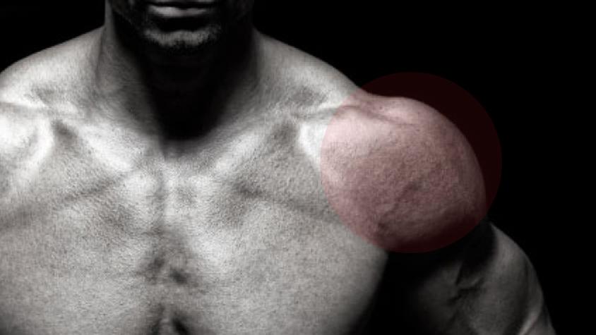 fájdalom a vállak ízületeiben mozgatás közben)