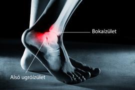1. fokú bokaízület kezelése