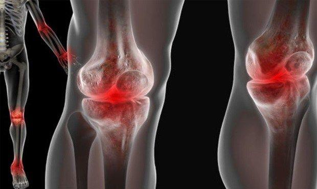 ízületi fájdalom az orvos lába