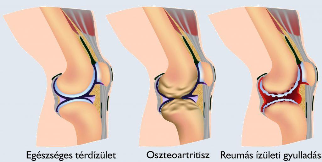 ízületi fájdalom esetén a láb megrándul