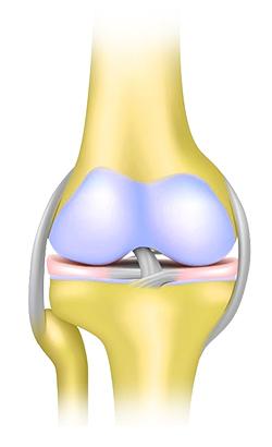 ketoprofen ízületi fájdalom masszázs terapeuta ízületei