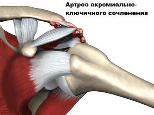 térdízület 2 fokozatának osteochondrosis)