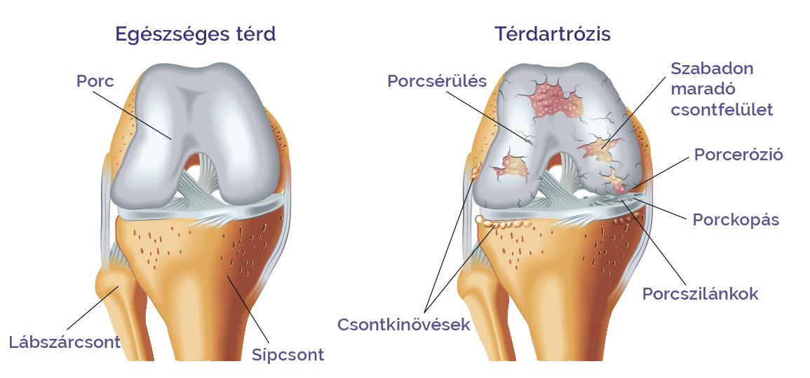 mézes kezelés térd artrózis