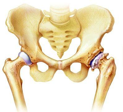 kenőcs felmelegítése nyaki osteochondrozzal