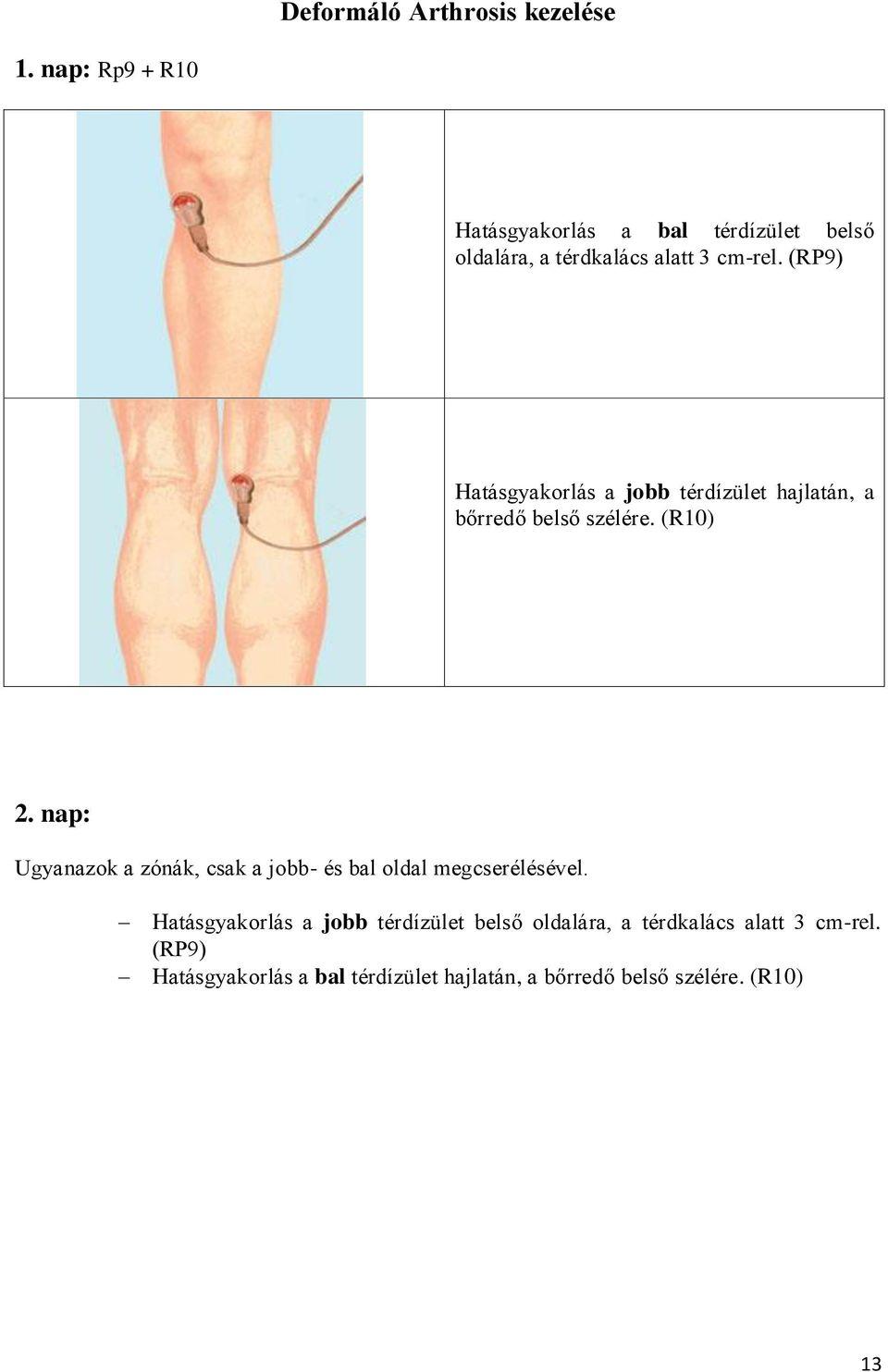 kézikönyv a térdízületek kezeléséről)