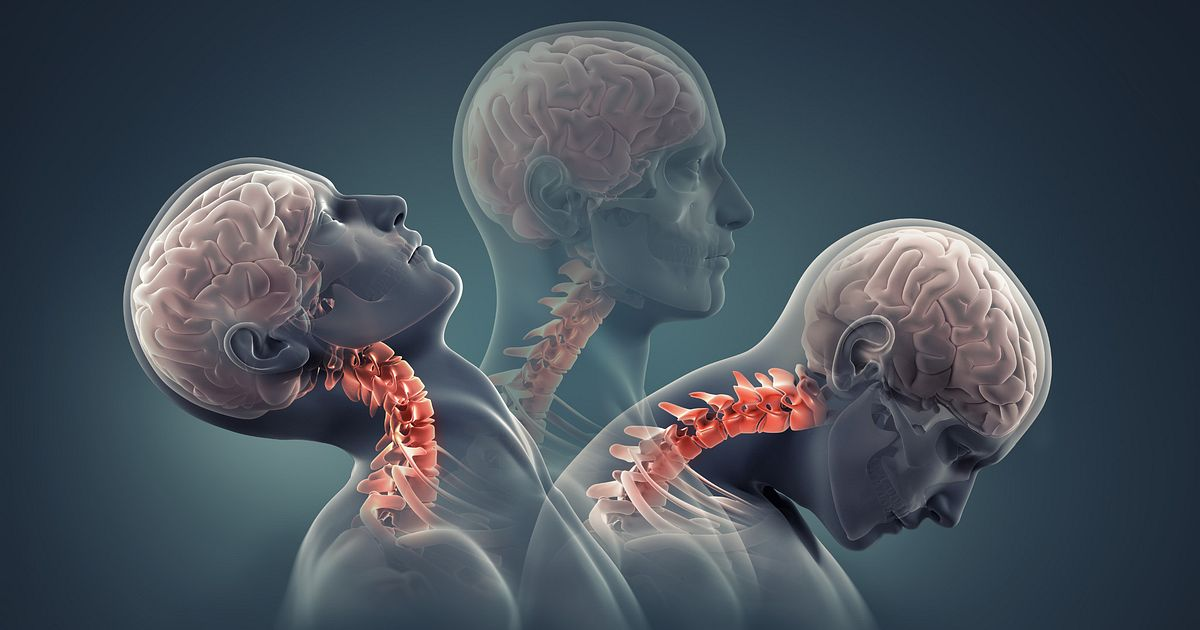 osteoarthritis symptoms neck)