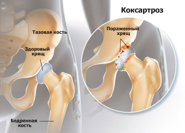 csípőízületek coxarthrosis kezelése