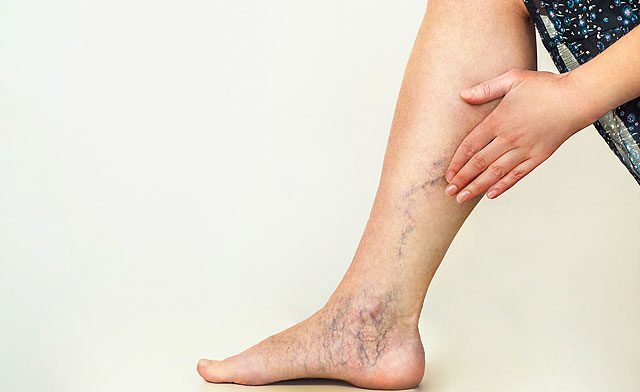 Tudja meg, hogyan segít a Voltaren lábfej- és bokafájdalom esetén