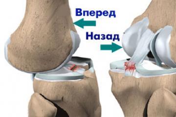kenőcsök a hát és az ízületek kezelésére a legújabb gyógyszer az artrózis kezelésére