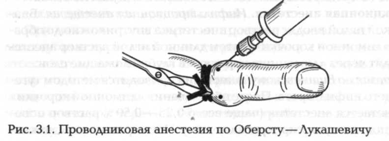 injekciós blokád a csípőízület fájdalmáért)