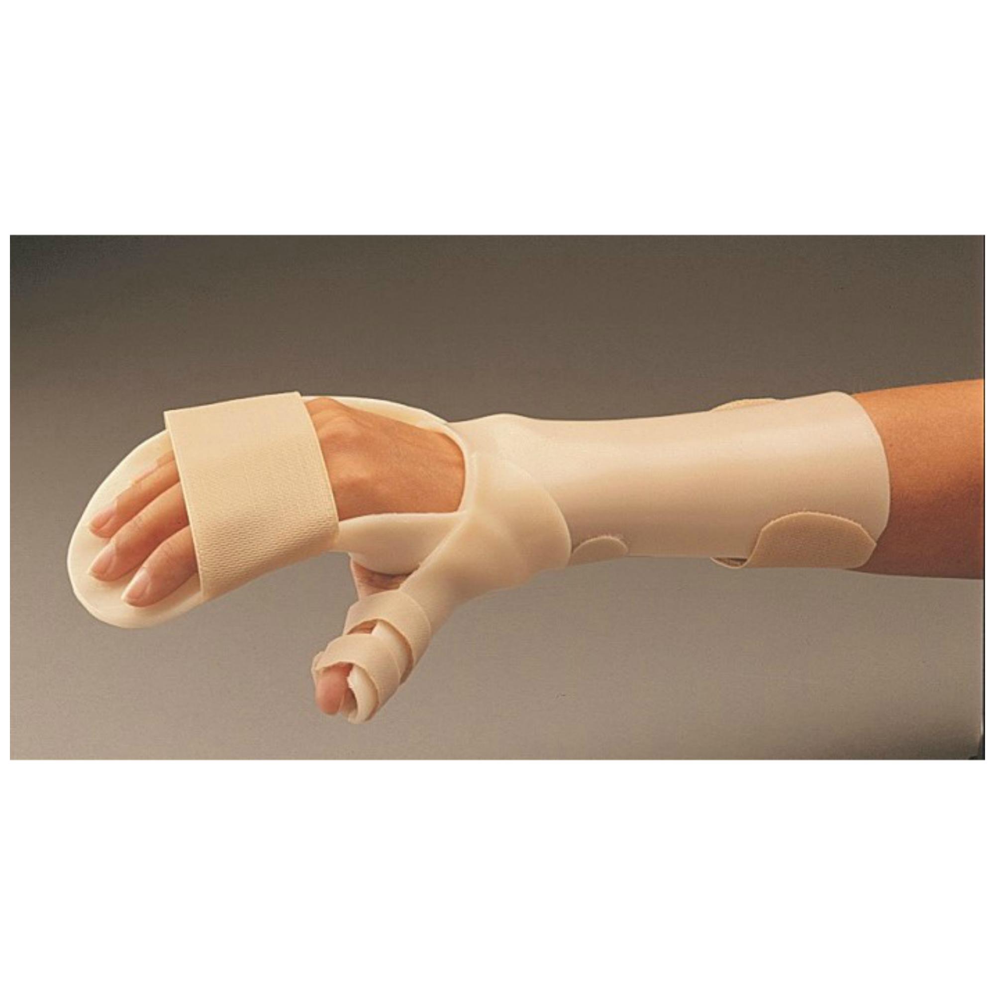az ujj posztraumás artrózisának kezelése)