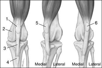 amely jobban segít a térd artrózisában