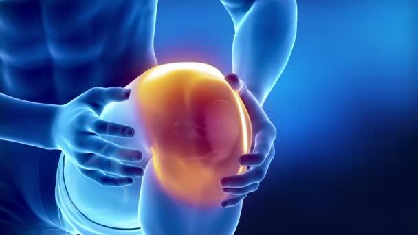 térdízület szerkezet artrózis)