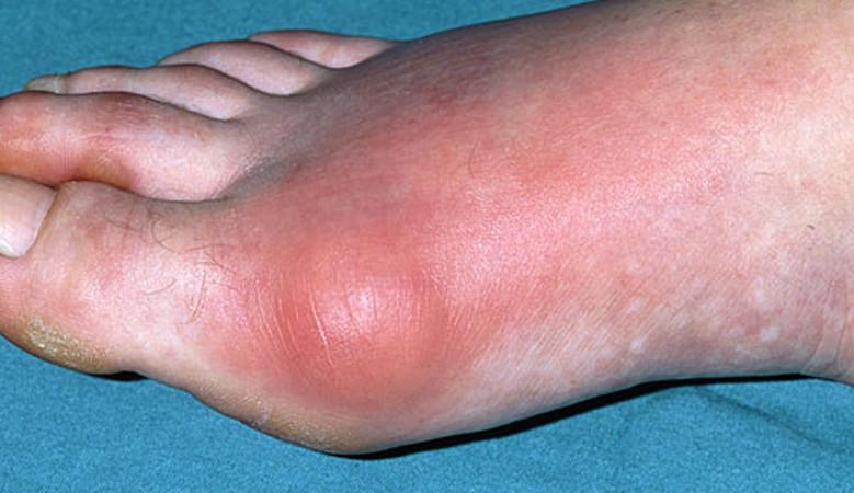 ízületi gyulladás a nagy lábujj kezelésében)