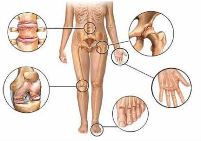 csípőízületek gyulladásának kezelése