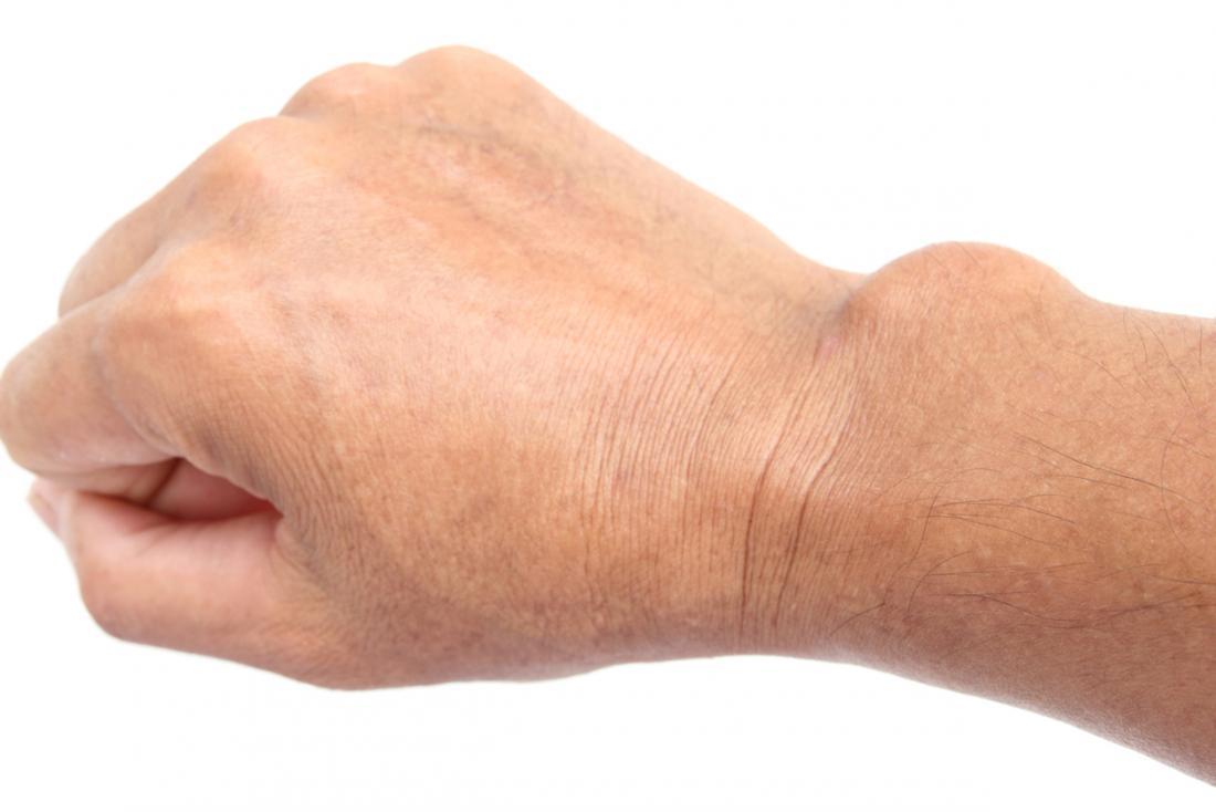 ganglion ízületi sérülések