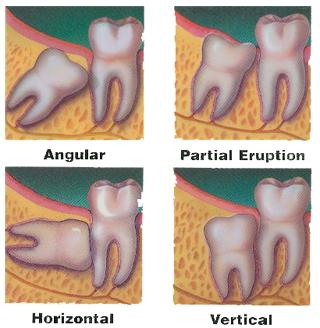 Foghúzás után - A fogorvos tanácsai