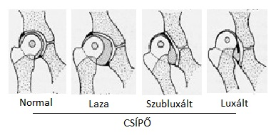 hogyan jelenik meg a csípőízület fájdalma)