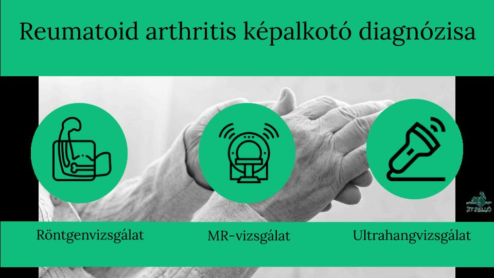 osteoarthritis tünetek diagnosztikai kezelése