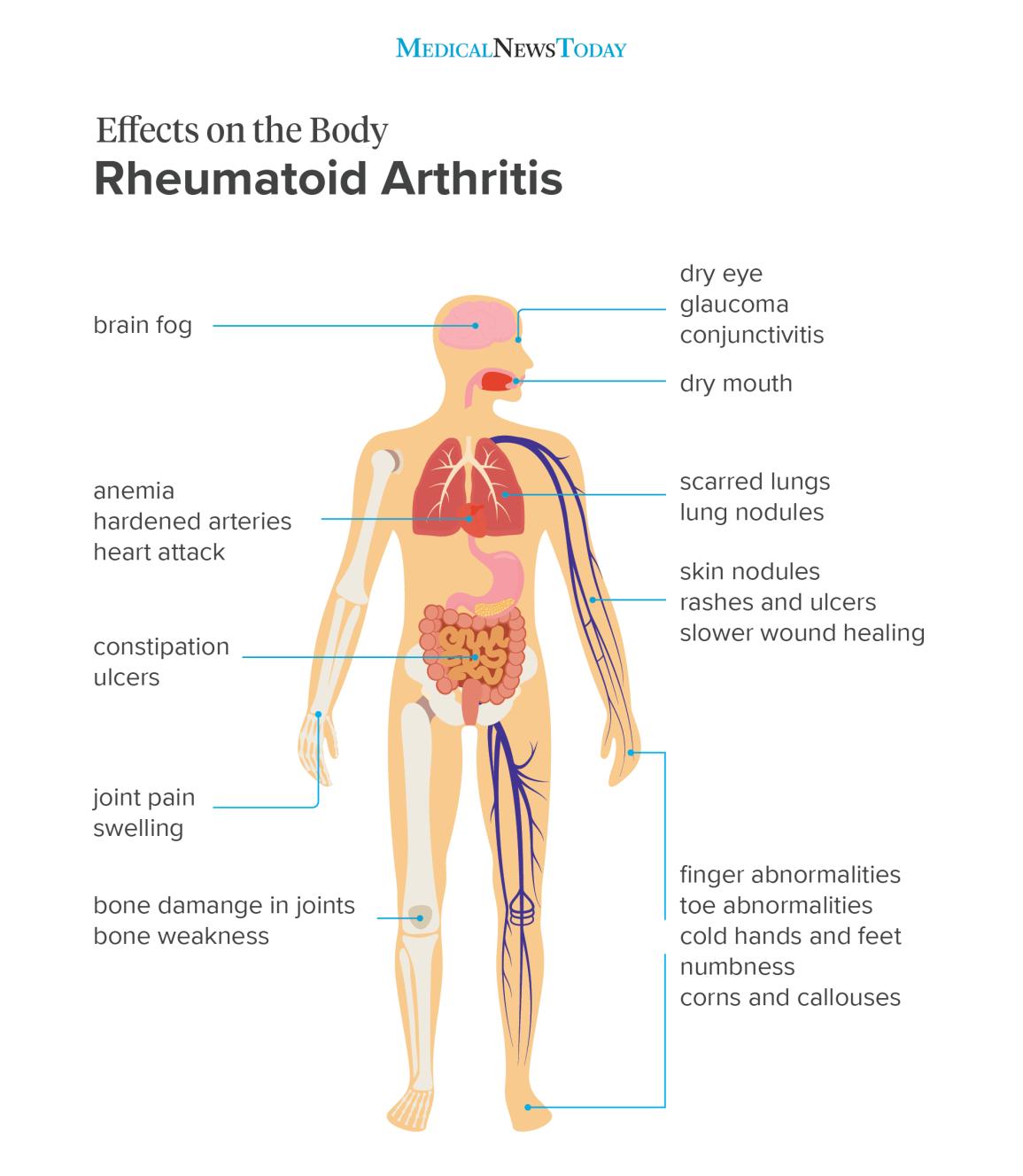 osteoarthritis symptoms neck