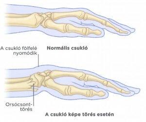 kéz csuklóízületei