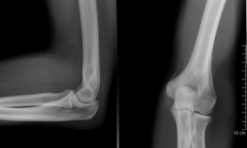 ulnaris artrózis kezelésére