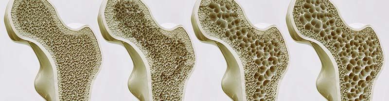 csípő-csontritkulás kezelése)