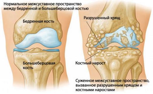 Deformáló gonartrózis a térdízület - kezelés 1, 2, 3 fok, a kezelés az ízületek