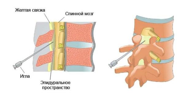 3 térdízület kezelése