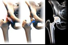 csípőízületi nem műtéti kezelése