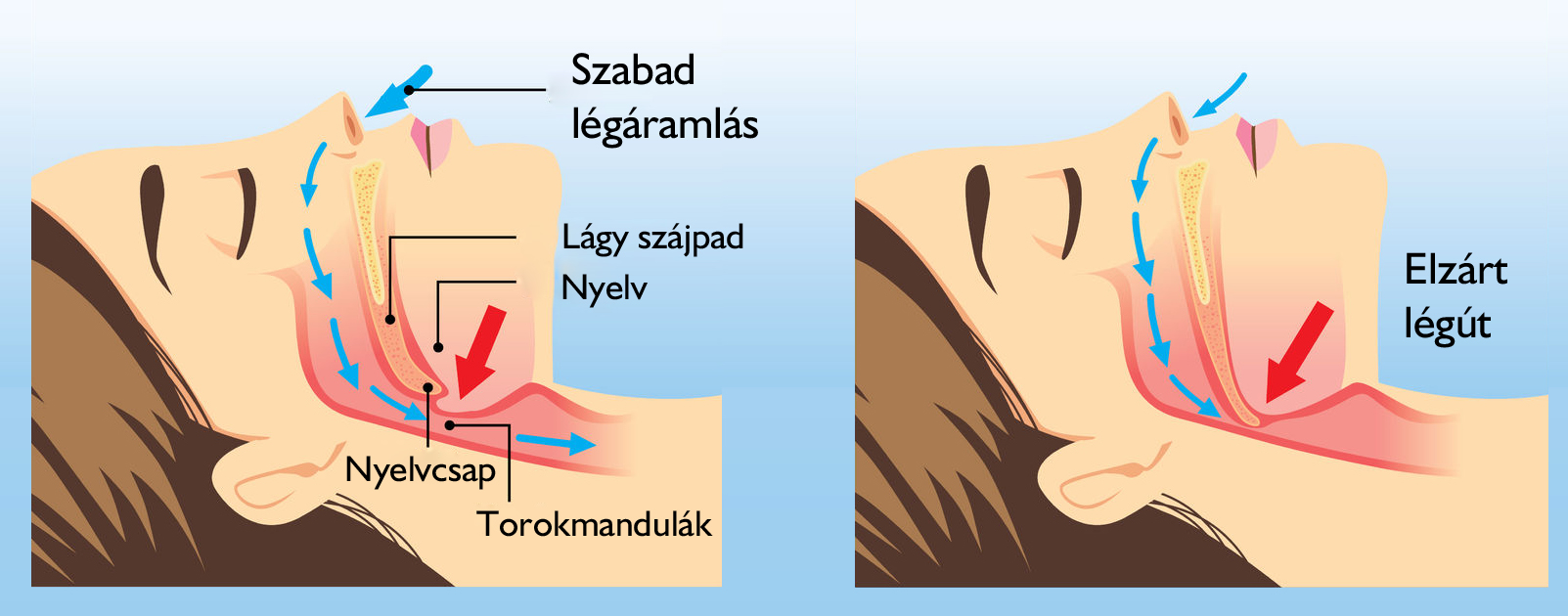 horkolás ízületi fájdalom)