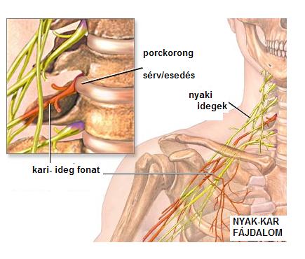 fájdalom a váll és a nyaki ízületekben