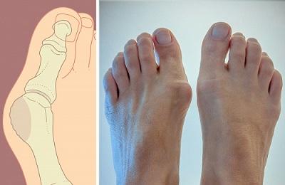 a csípőízületek deformáló artrózisa 2 fokkal