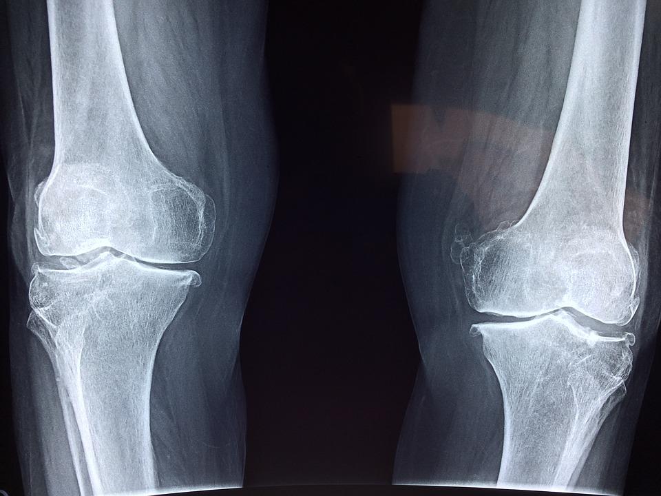 betegek áttekintése az artrózis kezeléséről