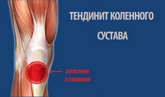 a térdízület ínszalagjának részleges törése)
