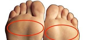diagnosztizálási kód a térd artrózisa