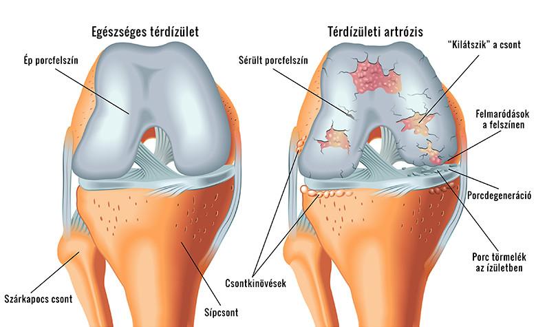 a térdízület 1. fokozatának ízületi tünetei